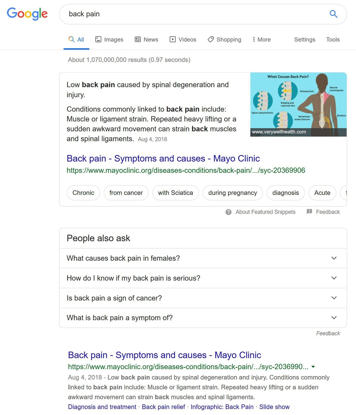 back pain search example - image